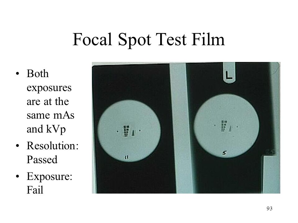 Focal Spot Test Film Both exposures are at the same mAs and kVp