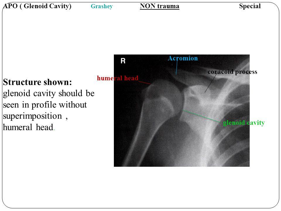 APO ( Glenoid Cavity) Grashey NON trauma Special
