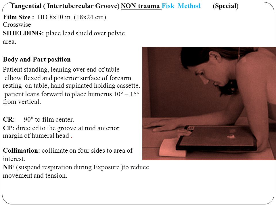 Tangential ( Intertubercular Groove) NON trauma Fisk Method (Special)