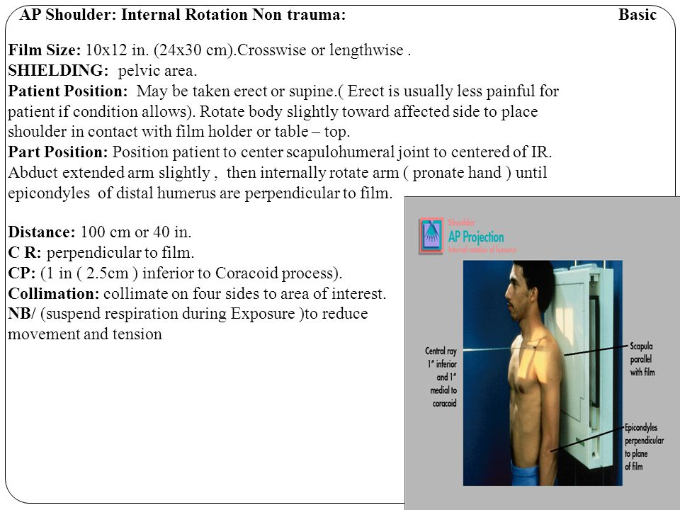AP Shoulder: Internal Rotation Non trauma: Basic