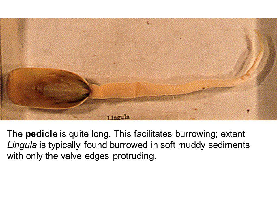 The pedicle is quite long