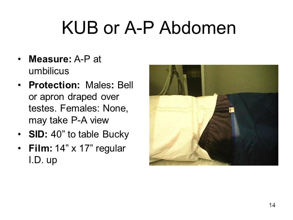 KUB or A-P Abdomen Measure: A-P at umbilicus