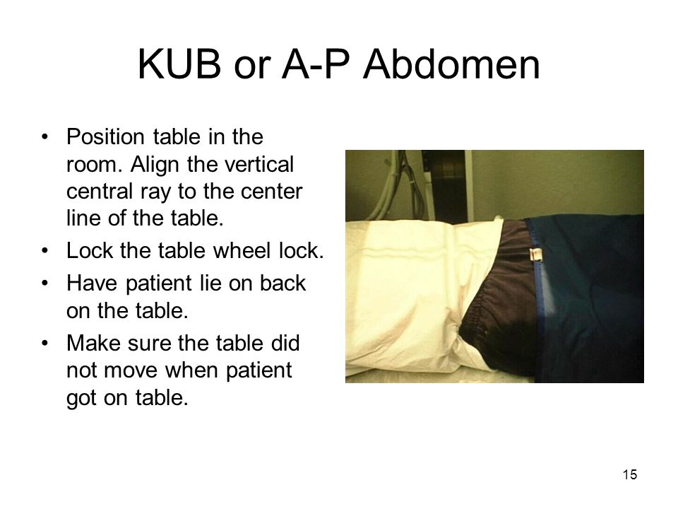 KUB or A-P Abdomen Position table in the room. Align the vertical central ray to the center line of the table.