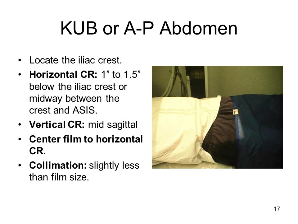 KUB or A-P Abdomen Locate the iliac crest.