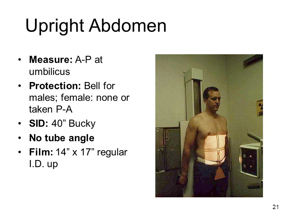 Upright Abdomen Measure: A-P at umbilicus