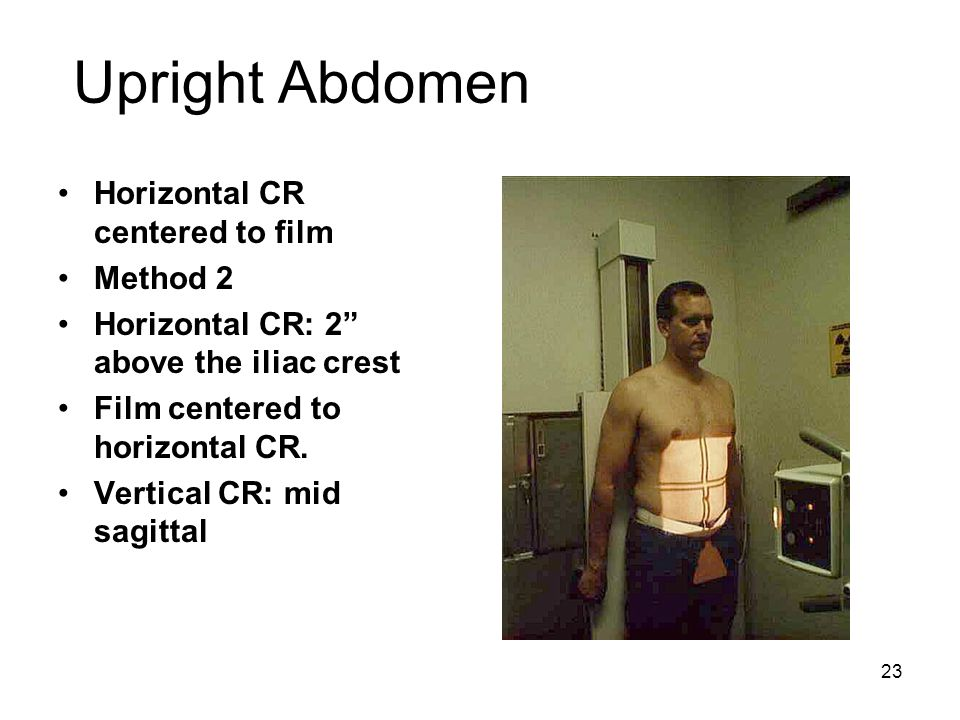 Upright Abdomen Horizontal CR centered to film Method 2