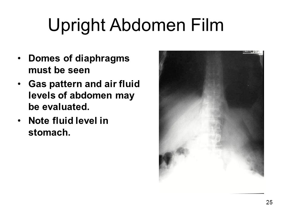 Upright Abdomen Film Domes of diaphragms must be seen