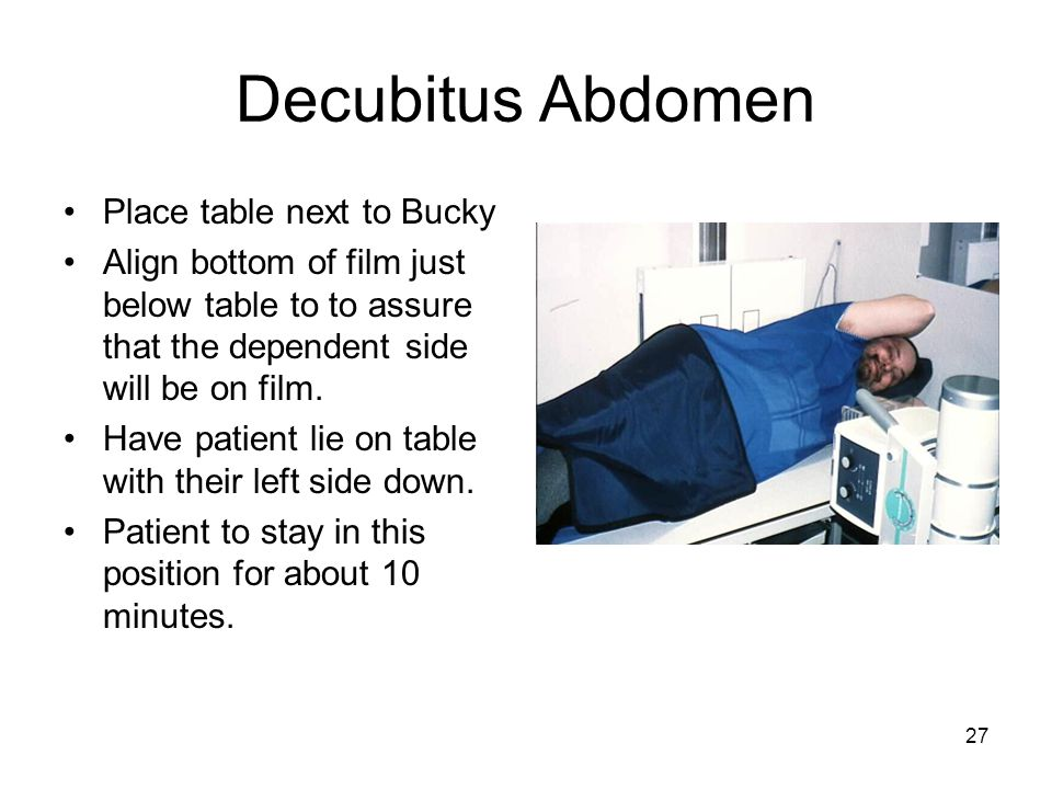 Decubitus Abdomen Place table next to Bucky