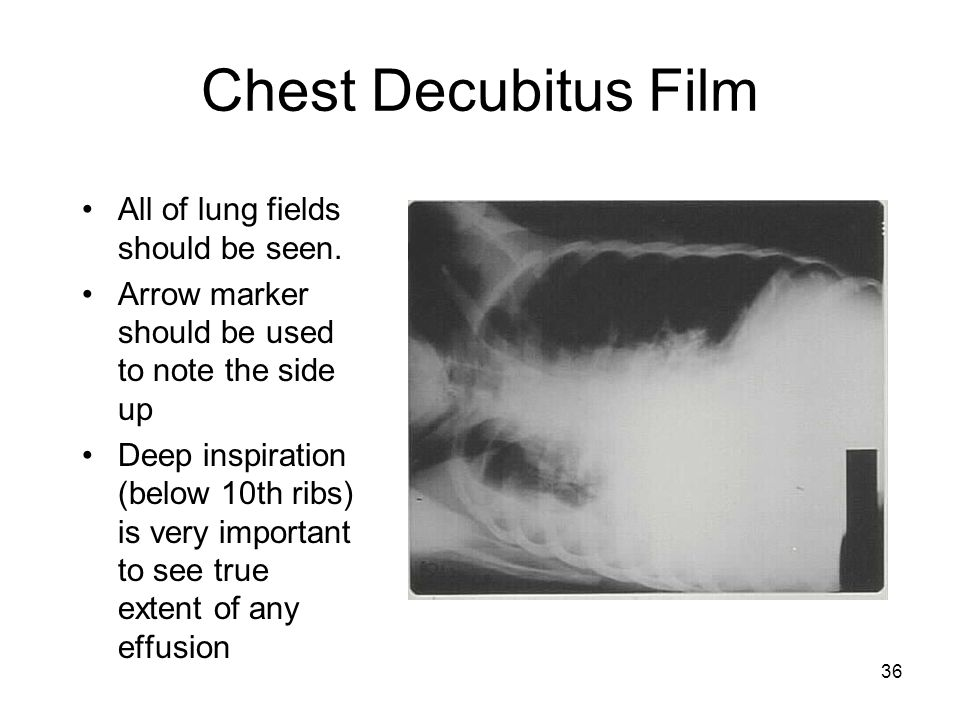 Chest Decubitus Film All of lung fields should be seen.