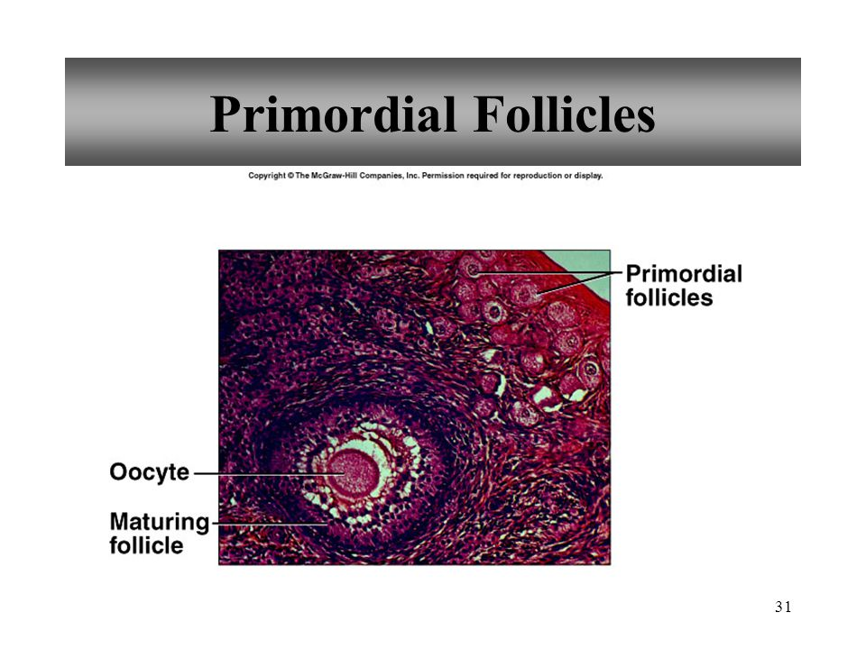 Primordial Follicles