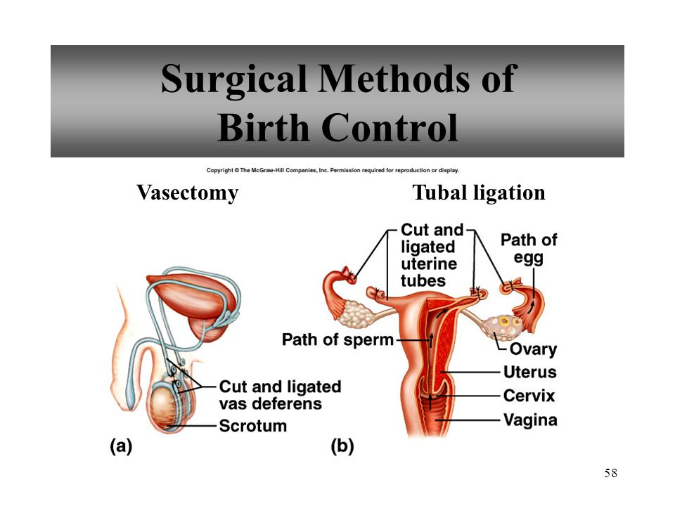 Surgical Methods of Birth Control