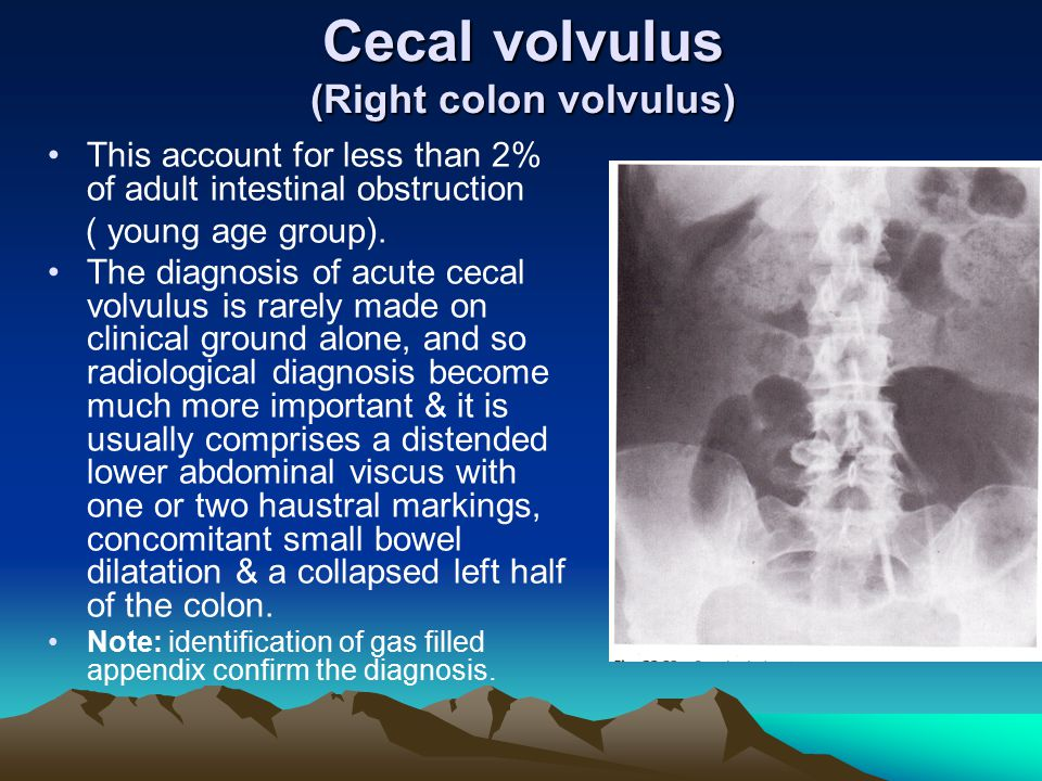Cecal volvulus (Right colon volvulus)