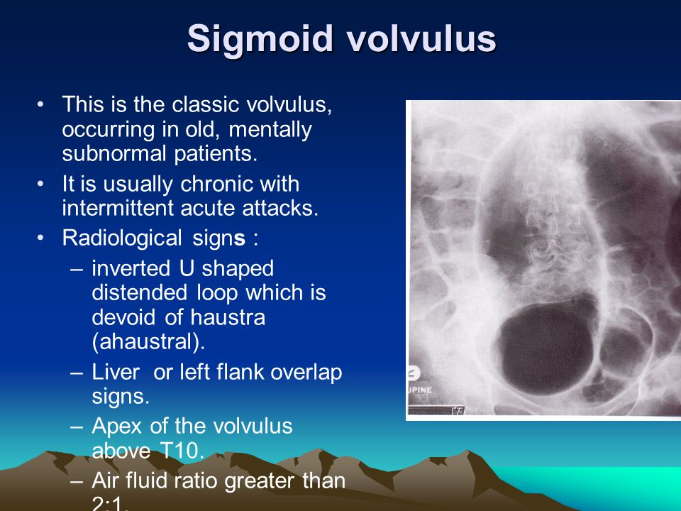 Sigmoid volvulus This is the classic volvulus, occurring in old, mentally subnormal patients. It is usually chronic with intermittent acute attacks.