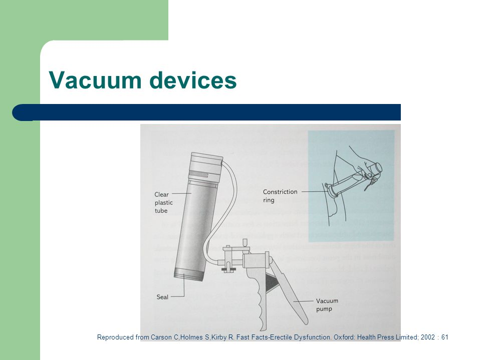 Vacuum devices Reproduced from Carson C,Holmes S,Kirby R.