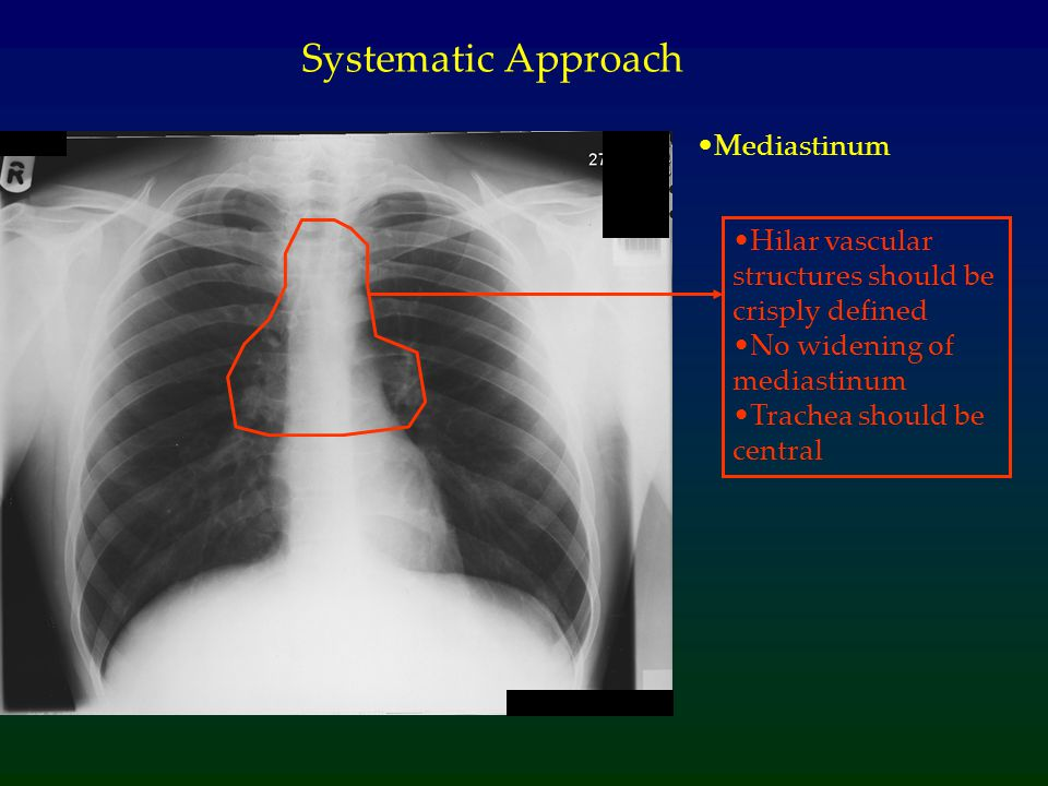 Systematic Approach Mediastinum