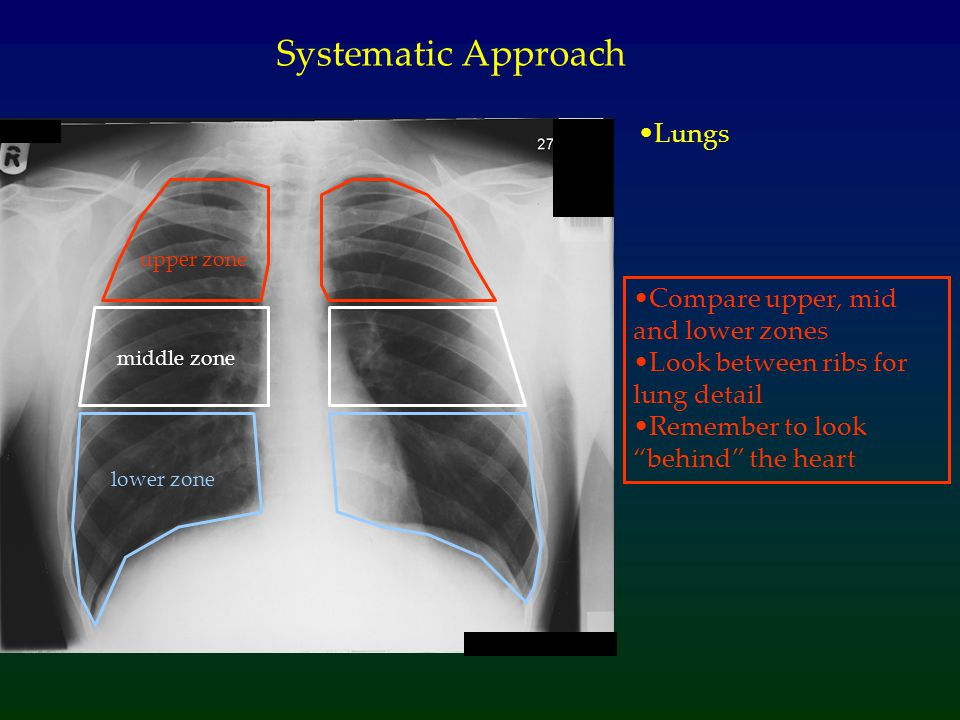 Systematic Approach Lungs Compare upper, mid and lower zones