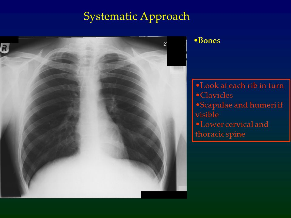 Systematic Approach Bones Look at each rib in turn Clavicles