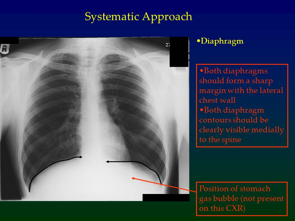 Systematic Approach Diaphragm