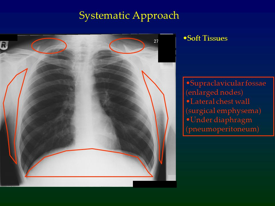 Systematic Approach Soft Tissues