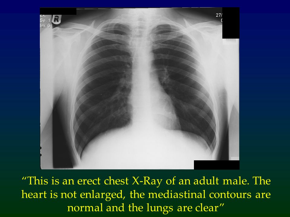 This is an erect chest X-Ray of an adult male