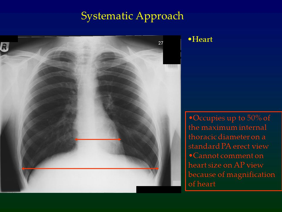Systematic Approach Heart