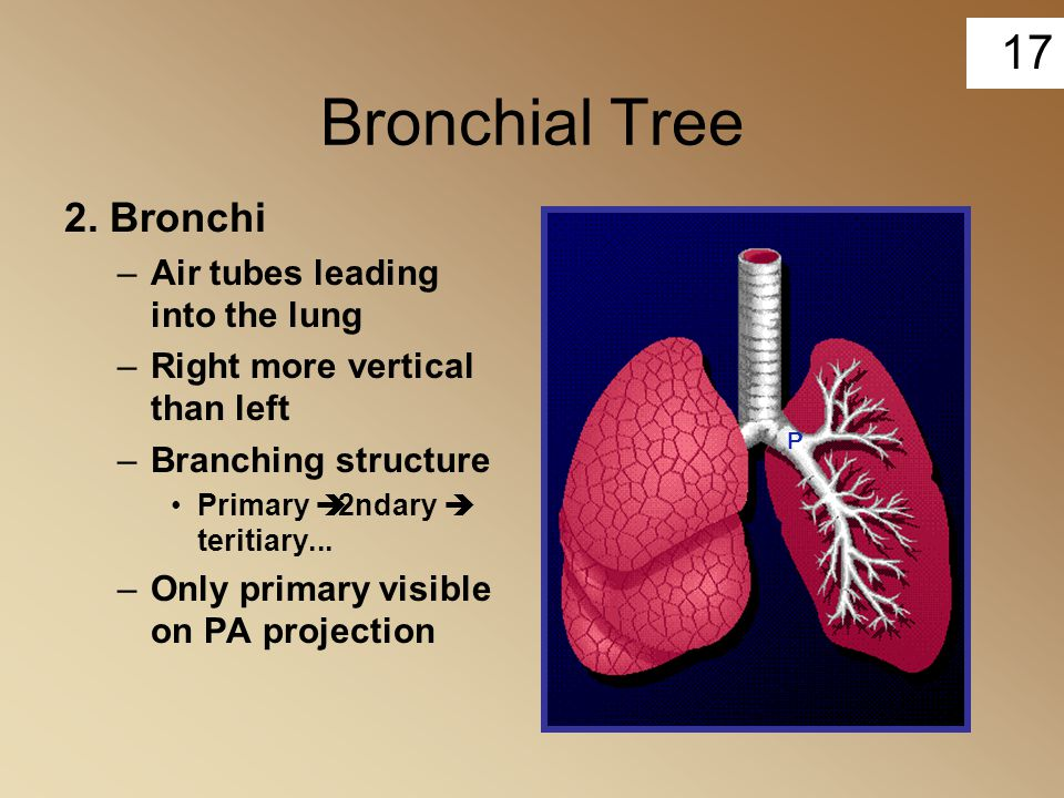Bronchial Tree 2. Bronchi Air tubes leading into the lung