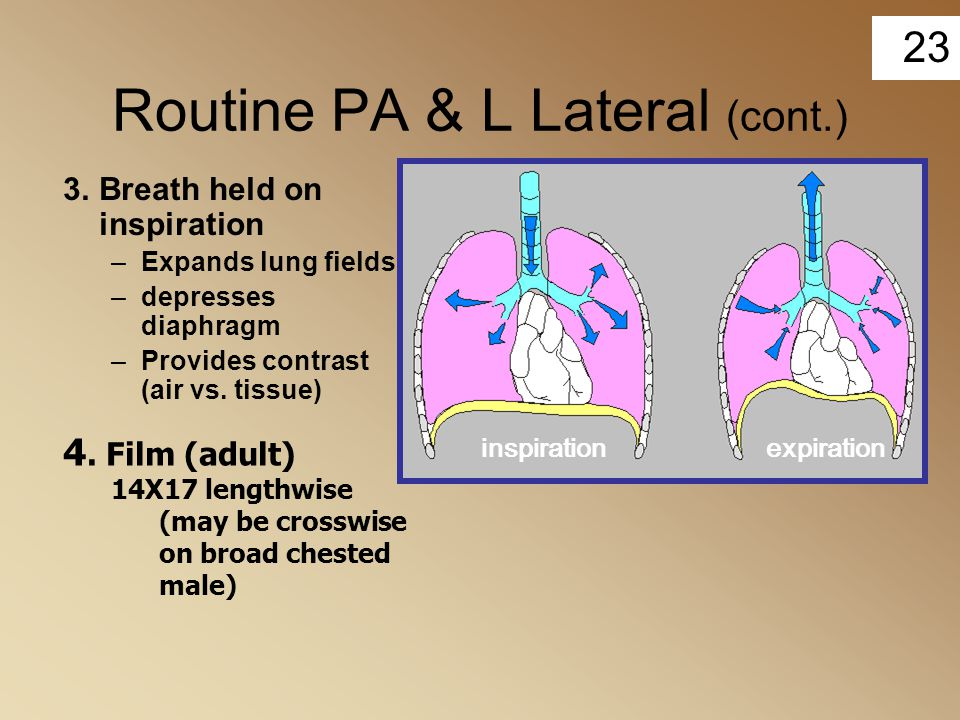 Routine PA & L Lateral (cont.)