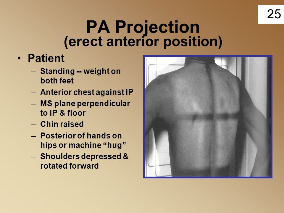 PA Projection (erect anterior position)