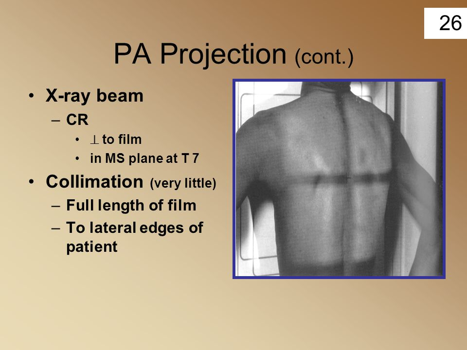 PA Projection (cont.) X-ray beam Collimation (very little) CR