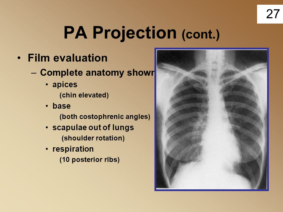 PA Projection (cont.) Film evaluation Complete anatomy shown apices