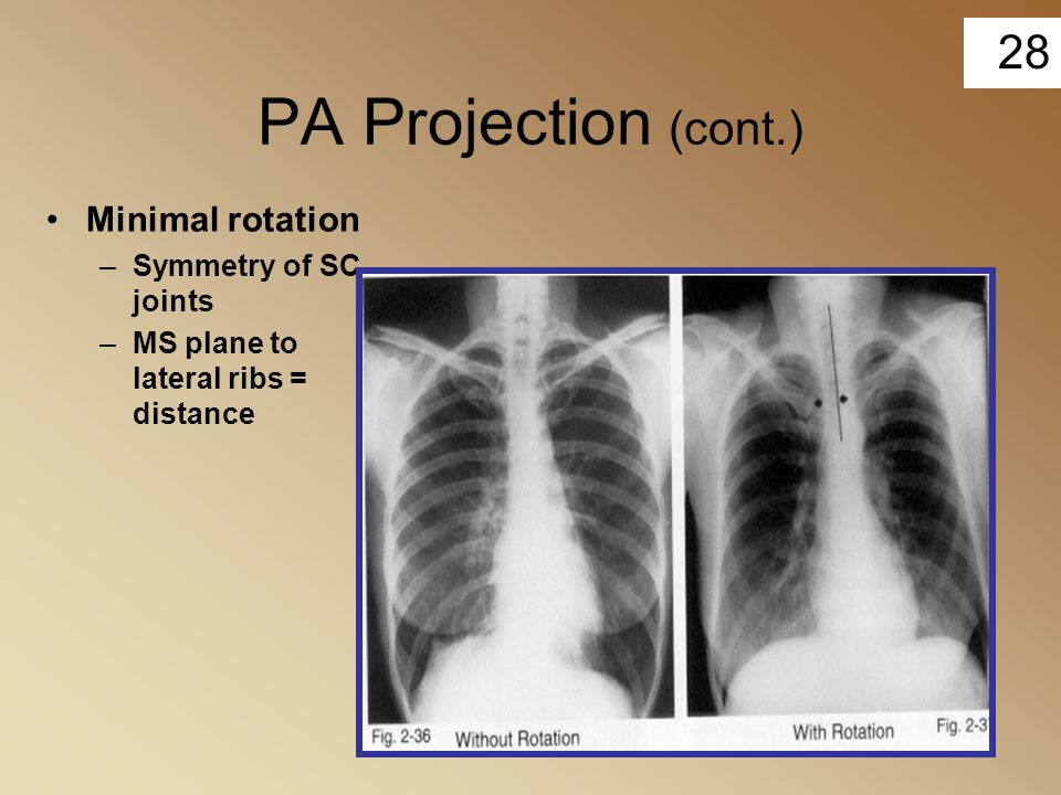 PA Projection (cont.) Minimal rotation Symmetry of SC joints