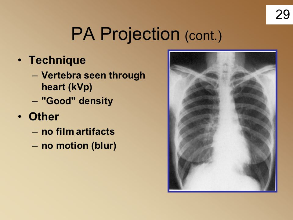 PA Projection (cont.) Technique Other