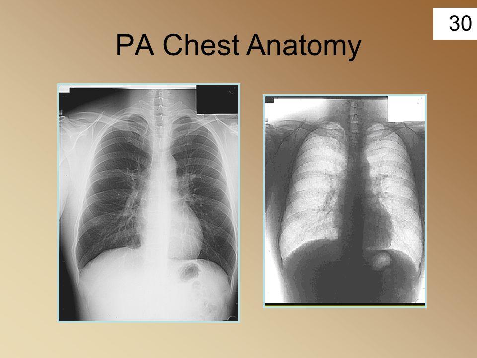 PA Chest Anatomy