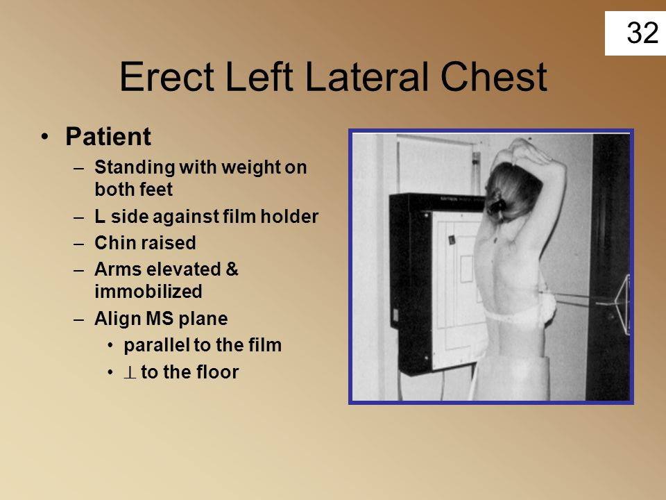Erect Left Lateral Chest