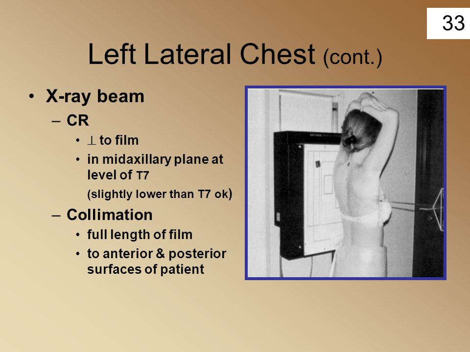 Left Lateral Chest (cont.)