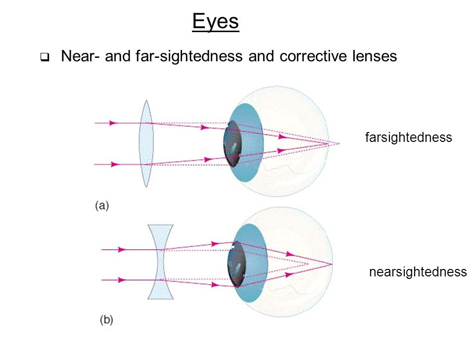 Eyes farsightedness nearsightedness