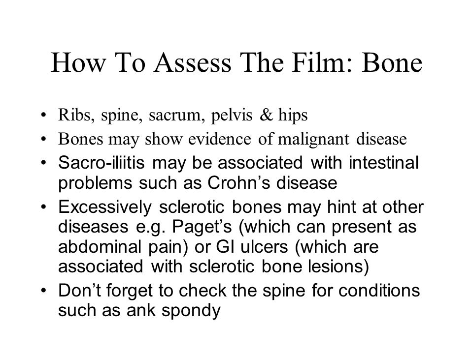 How To Assess The Film: Bone