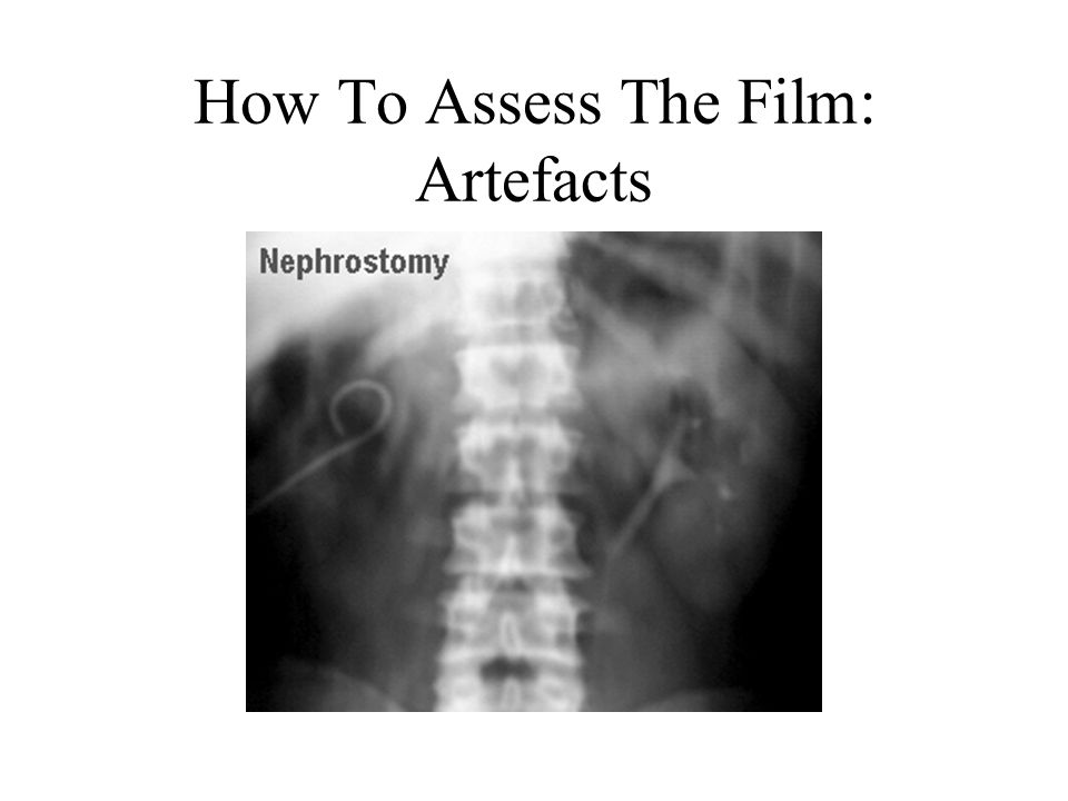 How To Assess The Film: Artefacts