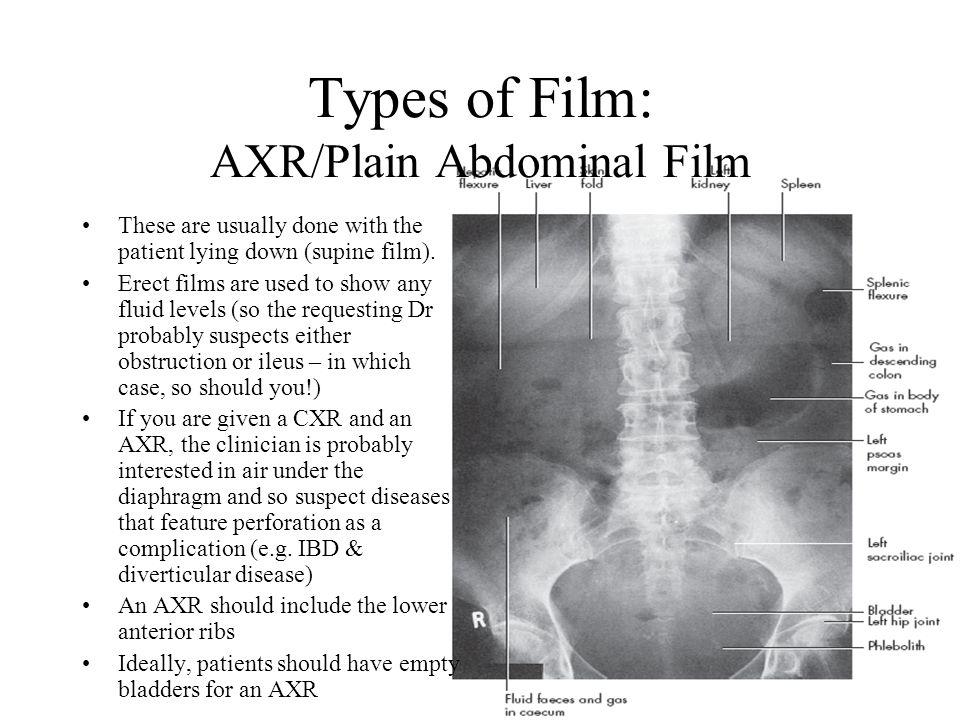 Types of Film: AXR/Plain Abdominal Film