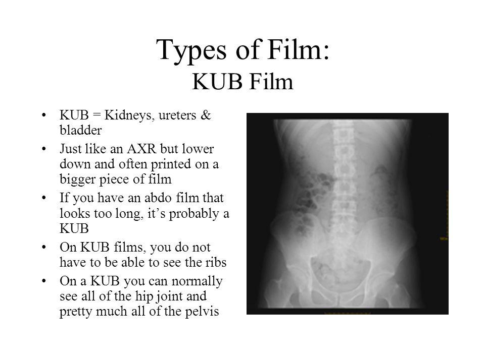 Types of Film: KUB Film KUB = Kidneys, ureters & bladder
