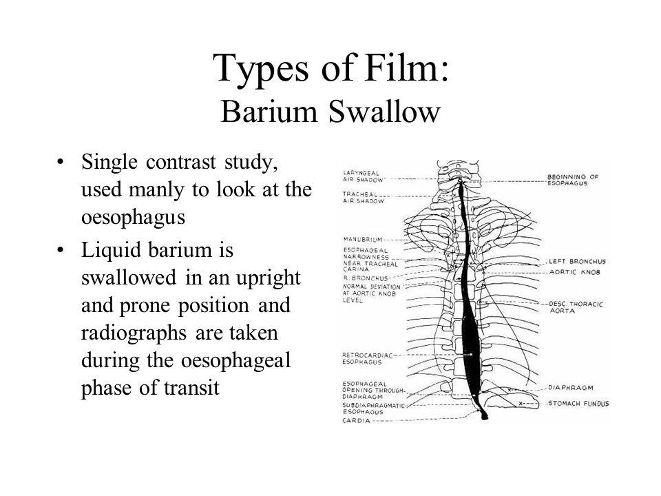 Types of Film: Barium Swallow
