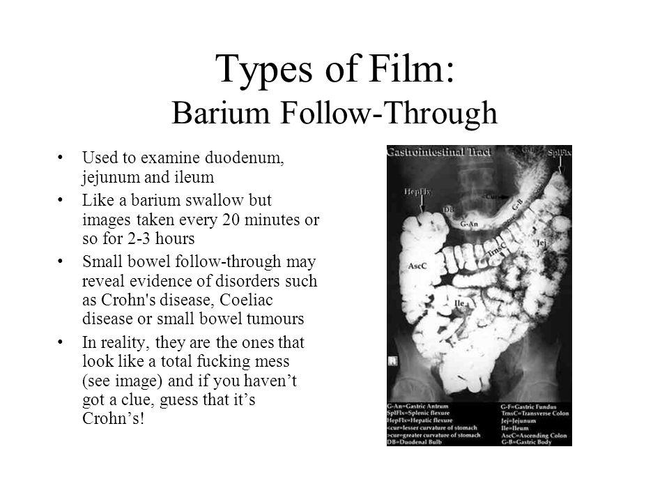 Types of Film: Barium Follow-Through