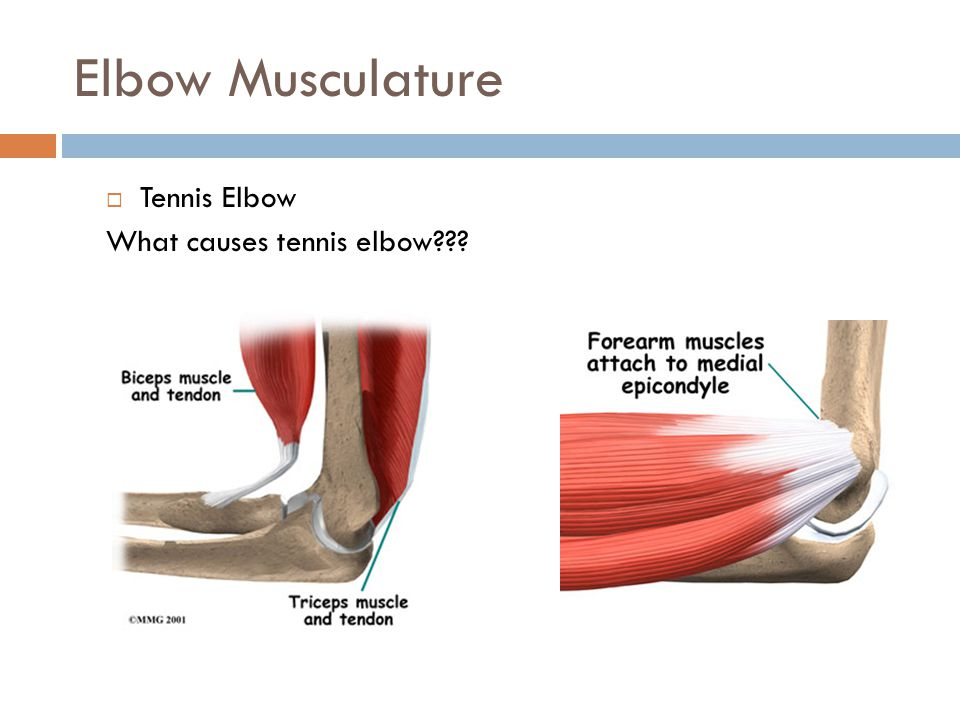 Elbow Musculature Tennis Elbow What causes tennis elbow