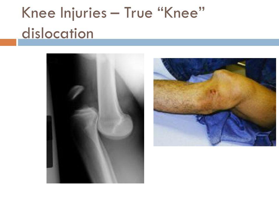 Knee Injuries – True Knee dislocation