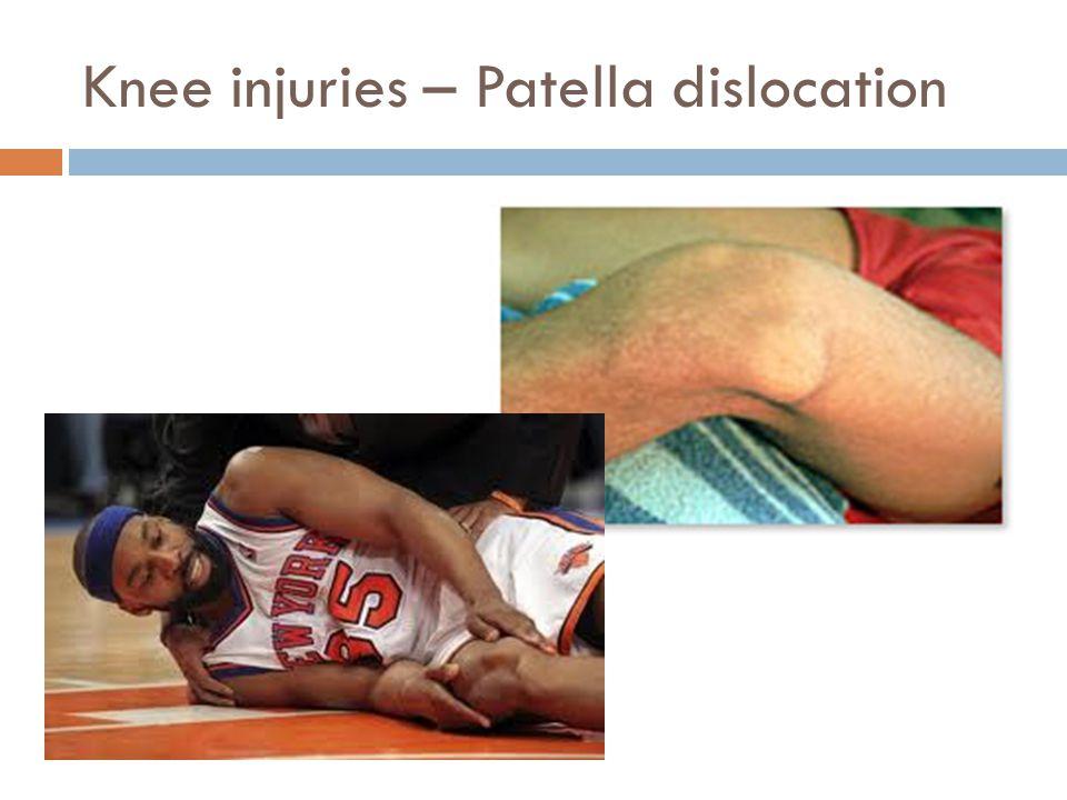 Knee injuries – Patella dislocation