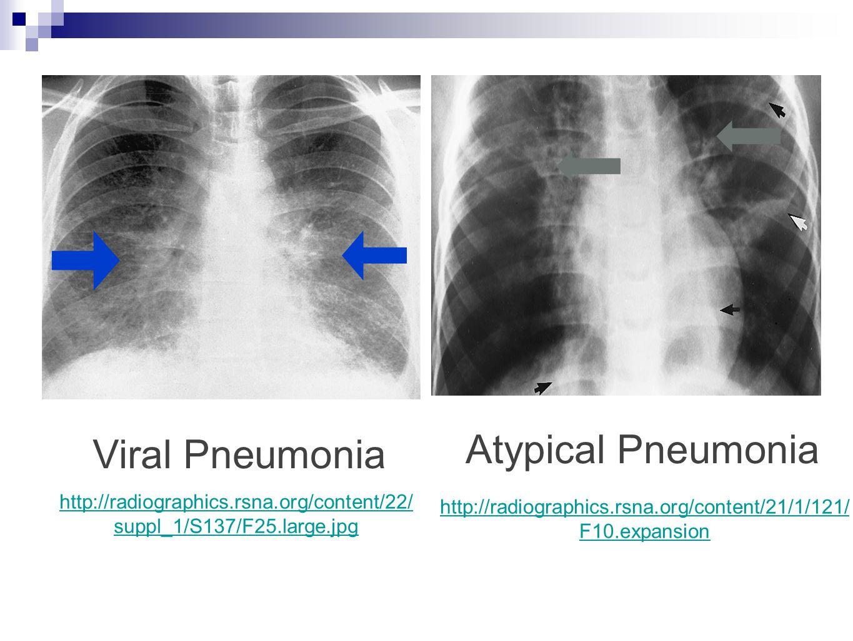 Viral Pneumonia Atypical Pneumonia