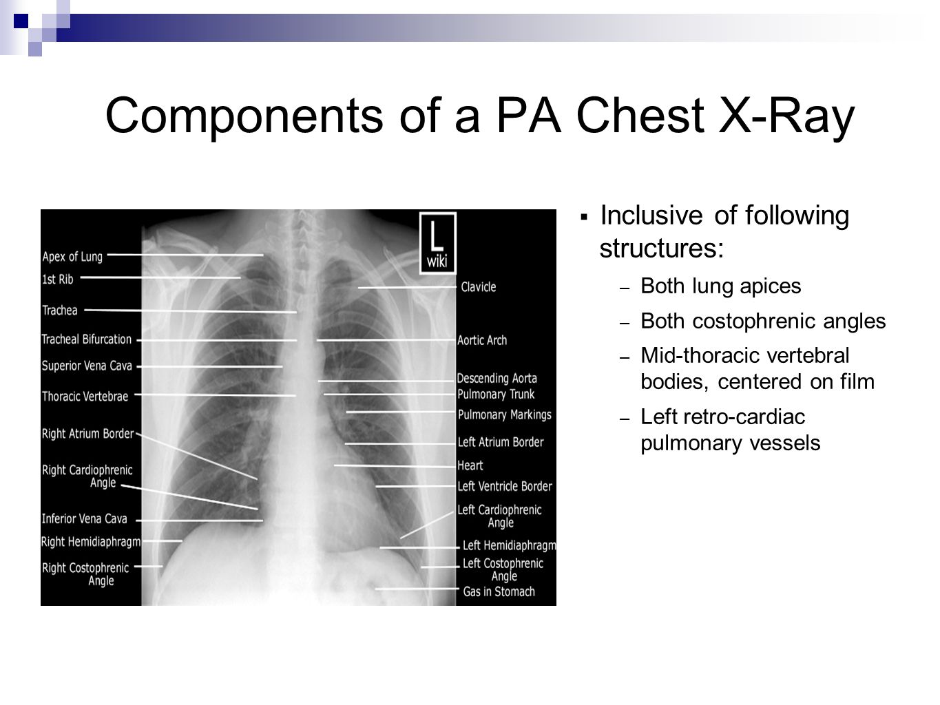 Components of a PA Chest X-Ray