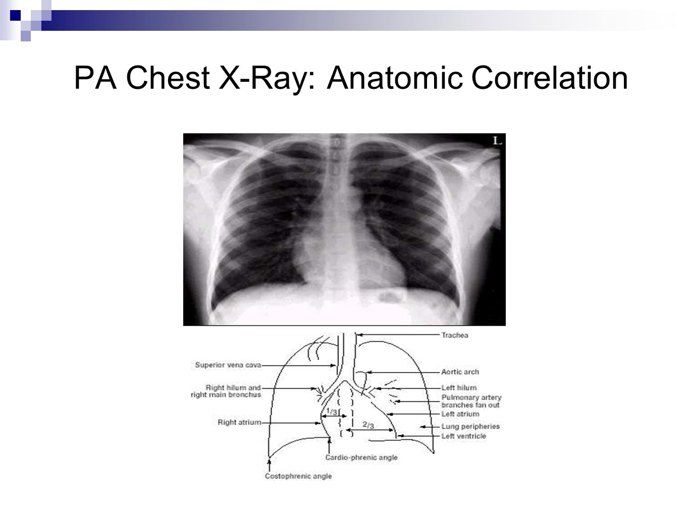 PA Chest X-Ray: Anatomic Correlation