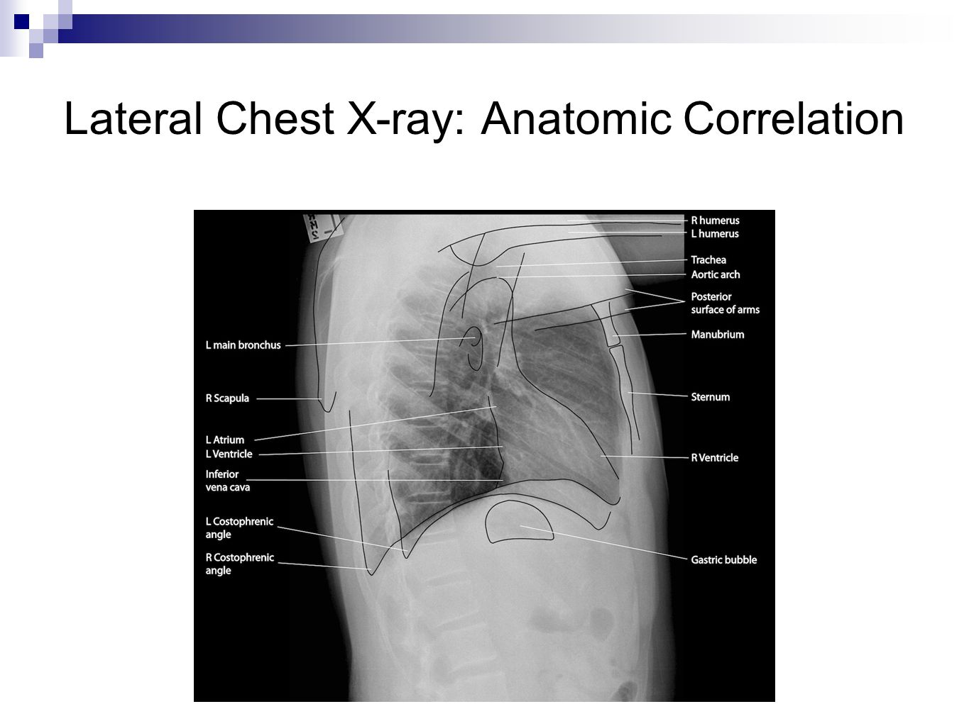 Lateral Chest X-ray: Anatomic Correlation