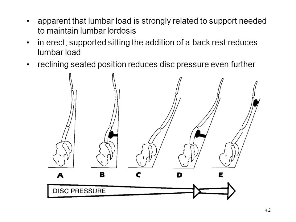 apparent that lumbar load is strongly related to support needed to maintain lumbar lordosis